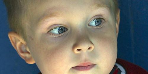 Leder til nyhetssak om barns syn