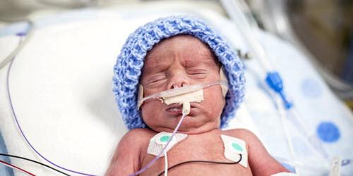 Prematur baby tilkoblet medisink utstyr. Foto: NTB