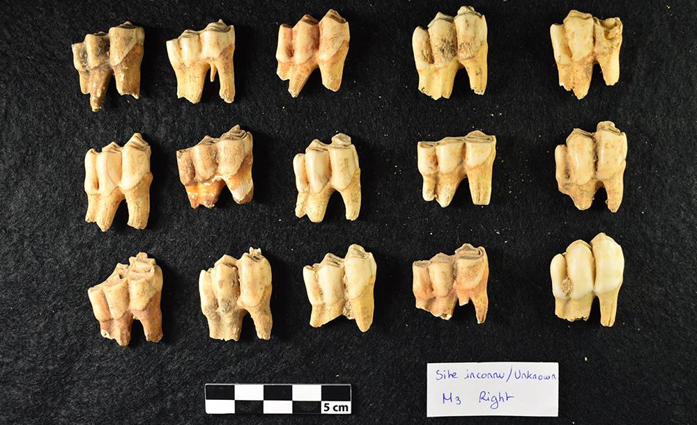 Photo of teeth.