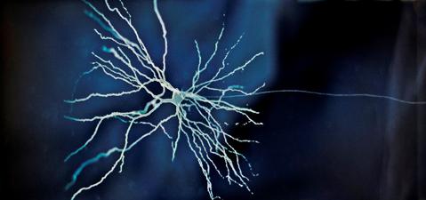 Kavil, hjernecelle